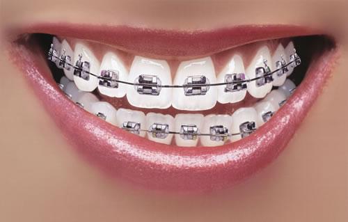 Niềng răng rẻ nhất nhanh nhất saigon tphcm