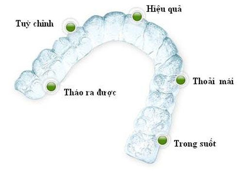 Kết quả hình ảnh cho trước và sau khi niềng răng không mắc cài