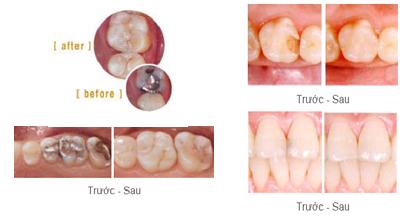Trám răng thẩm mỹ giá rẻ nhất, đẹp nhất TP HCM